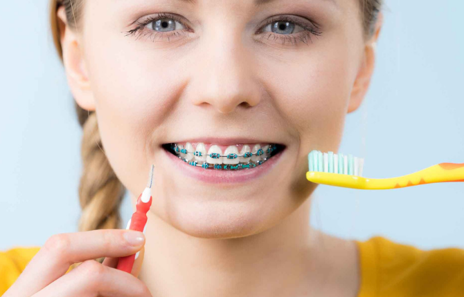 How To Clean Your Teeth With Braces!