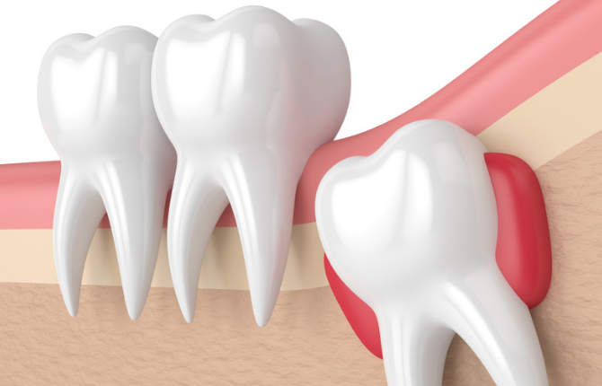 Should Wisdom Tooth Be Removed?