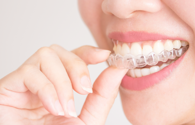 Benefits Of Clear Aligner Braces You Might Not Have Considered