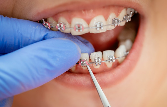 6 – Steps To Your Braces Treatment