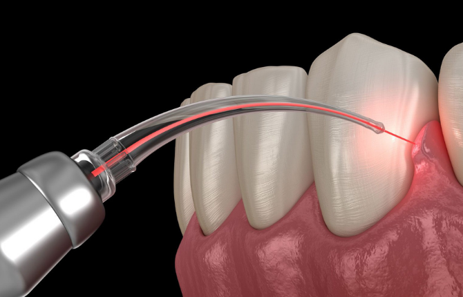 How We Use Laser Dentistry to Help Improve Your Oral Health