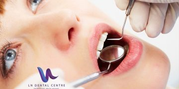 Why You Should Get a Socket Graft with a Tooth Extraction