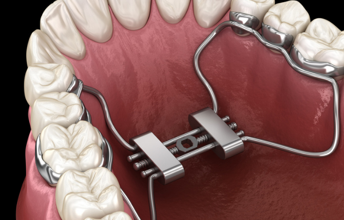 How Rapid Maxillary Expansion (RPE) Now Can Mean Avoiding Surgery in the Future
