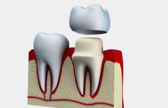 Why We Recommend a Dental Crown After Root Canal Treatment