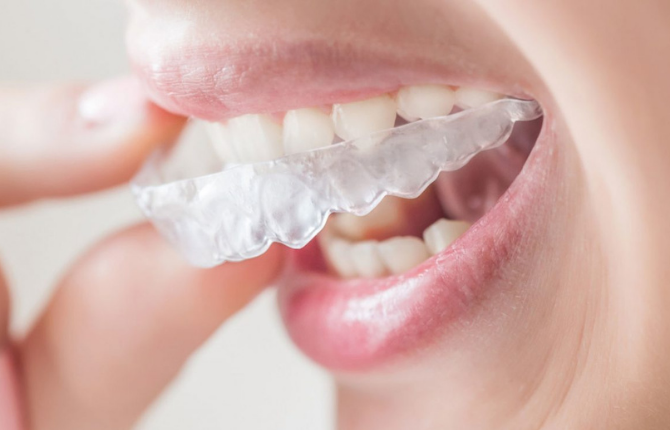 How Clear Dental Aligners Work
