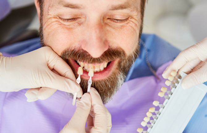 Veneers Can Hide A Number Of Dental Issues With Your Teeth