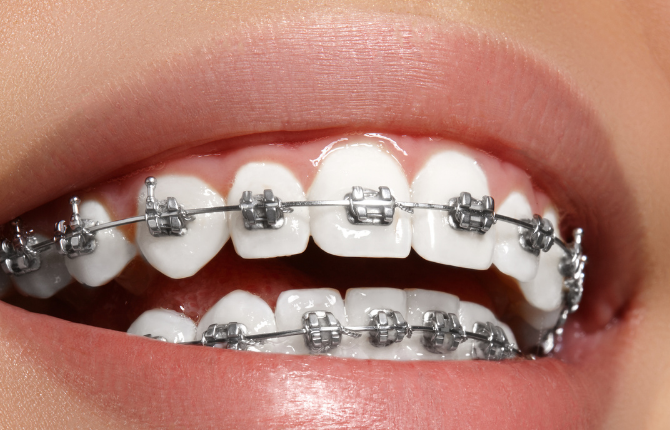 Orthodontic Treatment – A Straighter Smile for Every Age