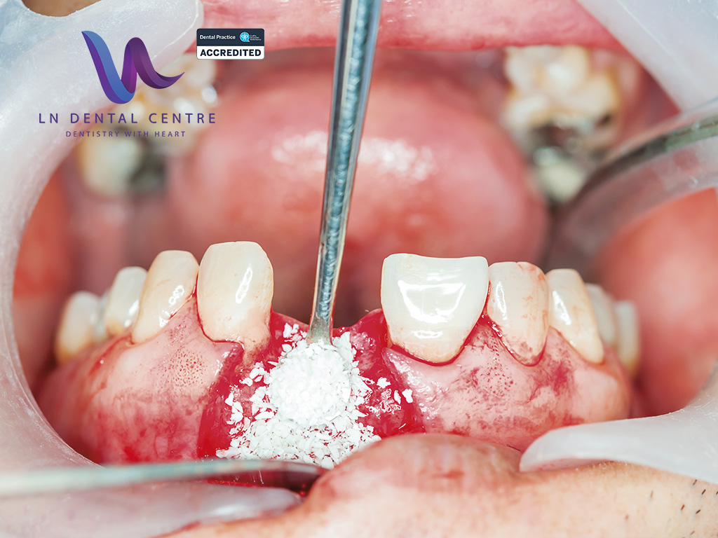Why You Should Get A Socket Graft With A Tooth Extraction Ln Dental Centre