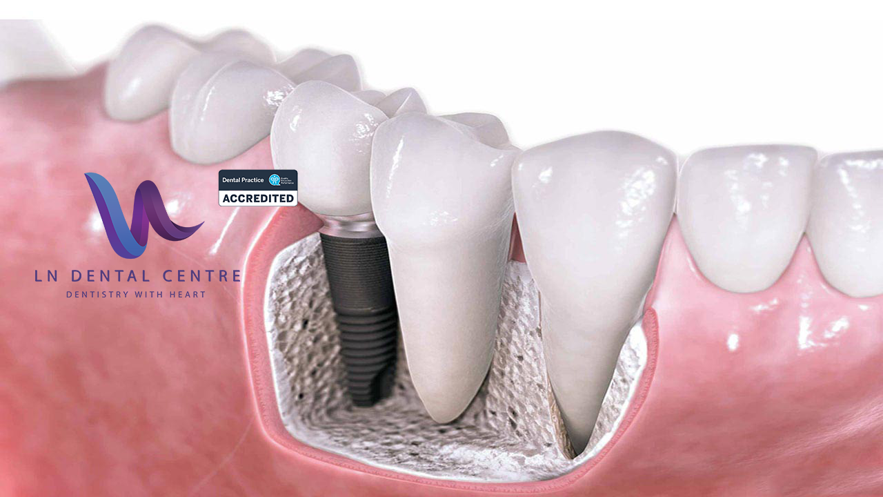 Implants-Bone-Grafting-Wide-2