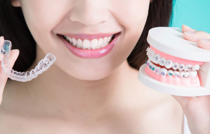 Braces: Are They Really That Intimidating?