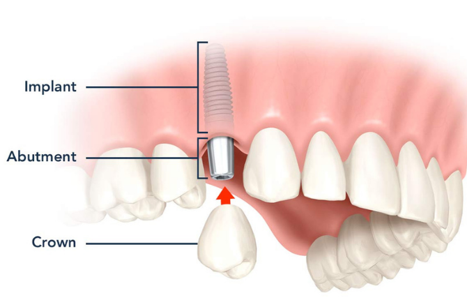 What are Dental Implants – Process of Dental Implants ?