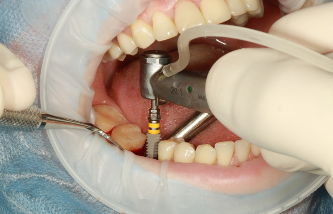How Long Can You Get Implant After Tooth Extraction?
