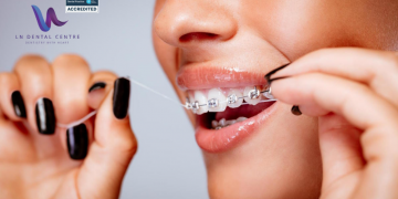 Is dental implant care different from teeth care?