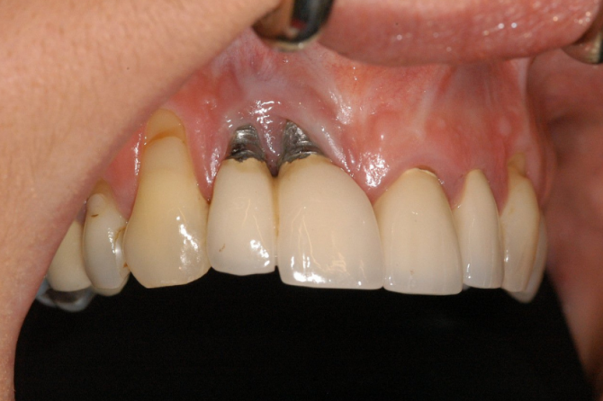 What Are Common Dental Implant Failures?
