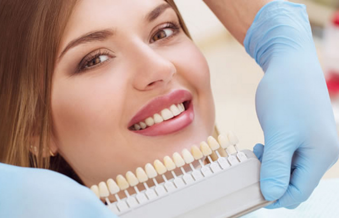 Who Is a Good Candidate for Dental Veneers?