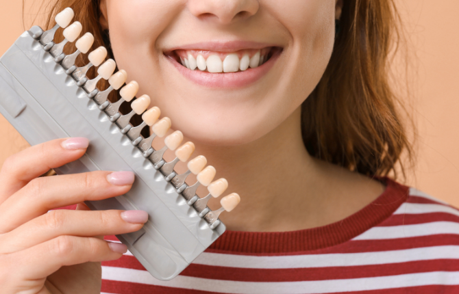 The Different Types of Dental Veneers