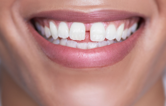 Diastema – Gaps Between Teeth: Causes and Effects